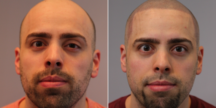 Best clinic for scalp micropigmentation in London