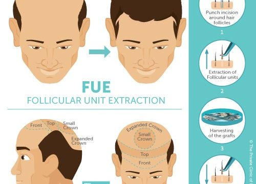 FUE hair transplant procedure advices