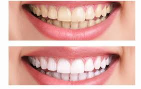 Advices for teeth whitening