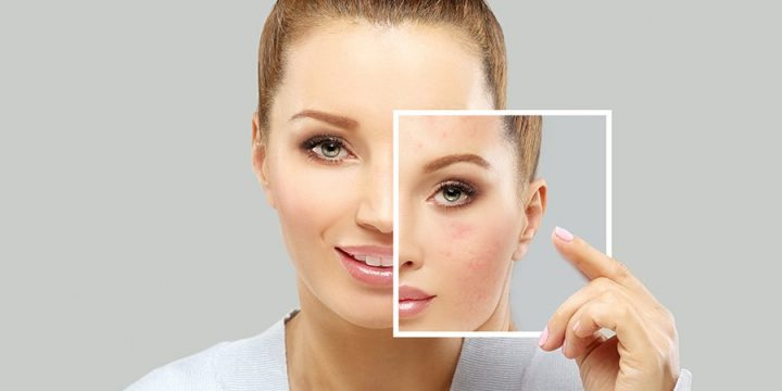 Top 3 acne issues causes